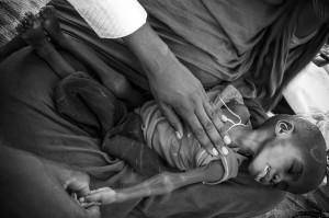 Mariam, de 18 meses es atendido por el doctor. Enfermó gravemente por ser alimentado con comida de adultos.