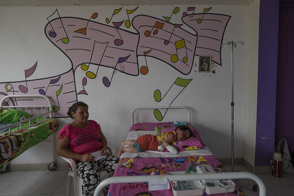 Edita y Angel descansan en la habitación del hospital tras la intervención realizada por los cirujanos de la Sociedad Española de Cirugía Plástica reparadora y Estética desplazados a Chiclayo, en Perú. © Pedro ARMESTRE
