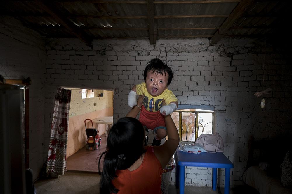 Evelyn, de 14 años, juega con su hermano Ángel César el día que regresa a casa tras la intervención médica. Pulsa sobre la imagen para ver la galería completa © Pedro ARMESTRE